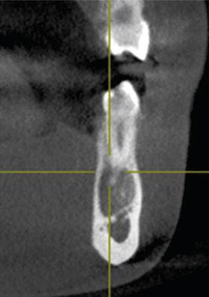 Corte transversal de la lesión en el cual se muestra el adelgazamiento de las corticales vestibular y lingual sin presentar expansión de las mismas.