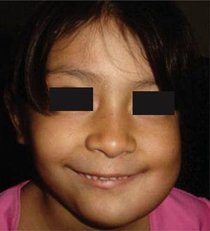 Aspecto facial dos meses posterior a resección de ameloblastoma mandibular izquierdo con colocación de prótesis de reconstrucción.