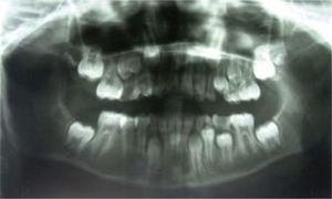 Extensa área radiolúcida mandibular derecha que involucra cóndilo y apófisis coronoides.