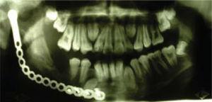 Aspecto radiográfico con neoformación ósea mandibular que sigue el contorno de placa de reconstrucción de titanio.