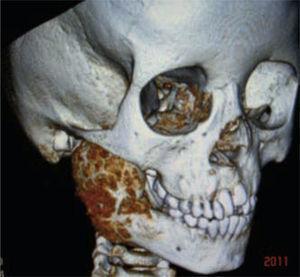 Tomografía 3D de osteoblastoma mandibular derecho.