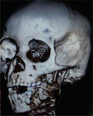 Tomografía 3D de amelobastoma mandibular izquierdo, conservando apófisis coronoides y cóndilo.