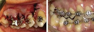 Placement of appliances is recommended one week before corticotomy.12.