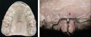Maxillary modified splint with Nickel-Titanium spring.7.