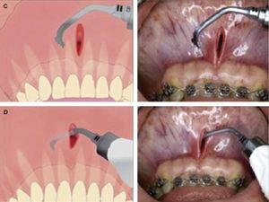 Surgical procedure with electrical micro-saw.6