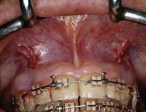 Incision suture.6