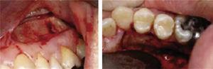 Selective alveolar corticotomy.7.