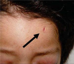 Scar at the left frontal region.