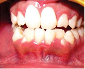 Intra-oral photograph showing lesion area without changes in mucosa color.