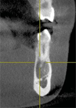 Cross-sectioned cut of the lesion showing thinning of lingual and vestibular cortical bone, without exhibiting expansion.