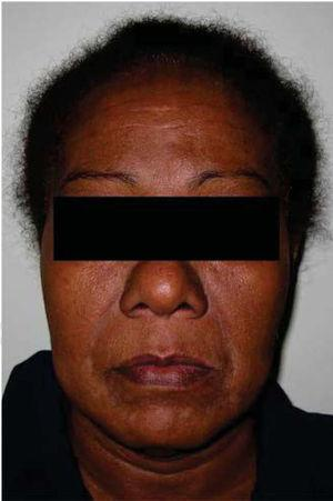 Extra-oral clinical picture. Slight volume increase in the right lower face is observed.