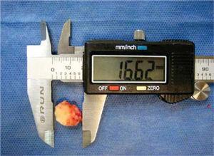 Sample of hard tissue similar to bone tissue of 1.5cm approximate size.