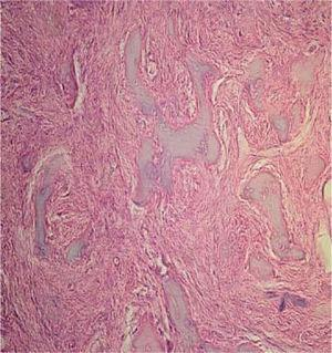 Histopathological study with hematoxylin and eosin of the lesion composed of irregular bone tissue interspersed with fibroblasts and numerous blood vessels circumscribed with endothelium of normal aspect and replete with erythrocytes with areas of dense lymphoplasmocytic inflammatory infiltrate.