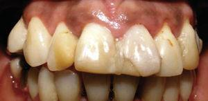 The dentist voluntarily performed maladjusted restorations which prevented suitable oral hygiene.