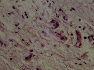 Bioceramic cement (21 days) with fibroblasts and collagen presence. Mild inflammatory infiltrate (H&E) (40X).