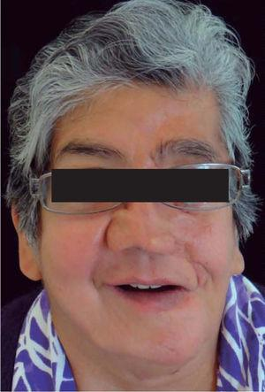 Patient's appearance with dentures in place.