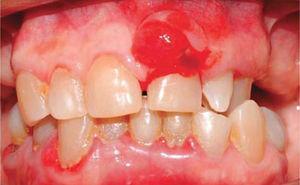 Vista frontal: periodontitis crónica generalizada y agrandamiento gingival a nivel de pieza 2.1.