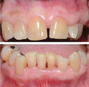 Vista frontal superior e inferior al mes. Resolución completa del agrandamiento gingival.