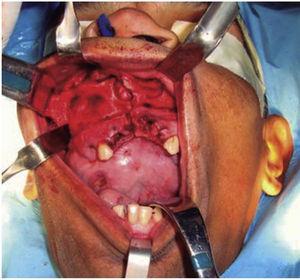 Fotografía clínica intraoperatoria donde se evidencia abordaje intraoral, disección subperióstica y demarcación de osteotomía de Brown tipo II B.