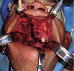 Fotografía clínica intraoral donde se observa lecho quirúrgico posterior a maxilectomía de Brown tipo II B generando una comunicación oro-naso-antral.