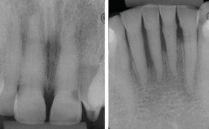 Continuity loss of bone crest in upper incisors and horizontal bone loss in lower incisors.