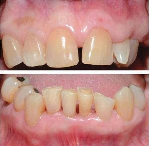 Upper and lower front view one month after treatment. Full resolution of gingival enlargement.