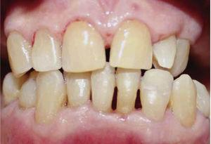 Re-evaluation of periodontal health circumstances 3 months after treatment.