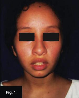 Eleven year old female patient, case 1.