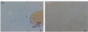 A) Imagen a las 72 horas de cultivo se observa el crecimiento de células alrededor del explanto. B) Imagen tomada a los ocho días de cultivo en confluencia.