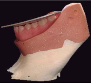 Colocación de dientes inferiores utilizando la platina curva.