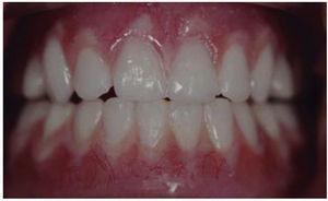 Vista intraoral de la dentadura del joven.