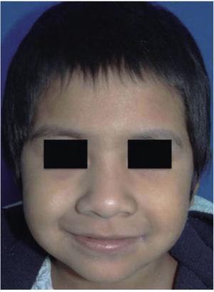 Foto inicial de la paciente del presente caso quien fue diagnosticada con leucemia aguda linfoblástica B.