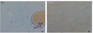 Image A) after 72hours culture, cell growth can be observed around the explant. Image B) taken after 8 days of confluence culture.
