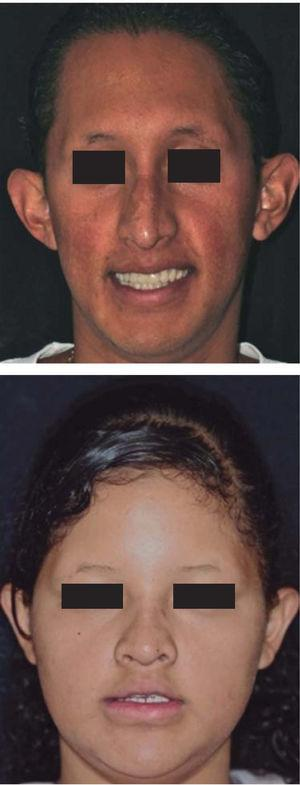 Prosthodontic treatment of patients afflicted with hypohidrotic