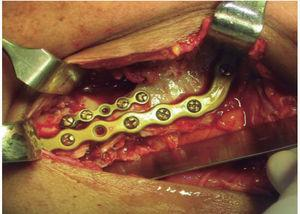 Colocación de material de osteosíntesis.