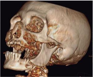 Tomographic reconstruction.