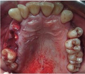 Occlusal photograph, dental fractures.