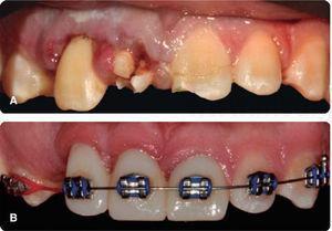 A) Inicial, 48 horas de la LDT. B) Final, con el tratamiento de ortodoncia.