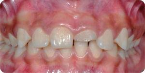 Aspecto inicial donde se observa la fractura del diente 21.