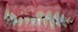 Cicatrización a los 10 días del tratamiento de urgencia.