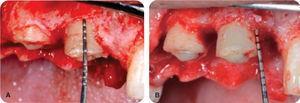 Osteoplastia en el alargamiento de corona.