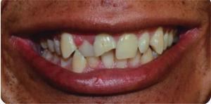 Initial aspect with fracture of tooth 11, gingival enlargement in tooth number 12 and scar in the upper lip.