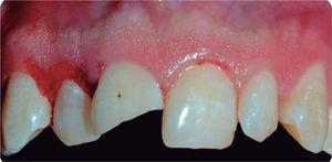 Gingivectomy and gingivoplasty.