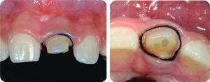 Double-thread gingival separation in order to make occlusal impression of fiber glass postcementation and thread.
