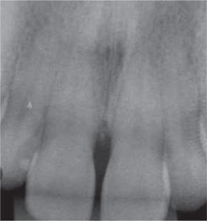 Radiografía periapical a nivel de piezas 1.1 y 2.1 Presencia de pérdida ósea crestal.