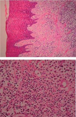(HE 5x) Epitelio acantósico, hiperplasia pseudoepiteliomatosa, lámina propia, aparentemente canales vasculares e infiltrado inflamatorio (HE 10x) Canales vasculares tapizados de células endoteliales, infiltrado inflamatorio compuesto por linfocitos, células plasmáticas, histiocitos y ocasionales polimorfos nucleares.