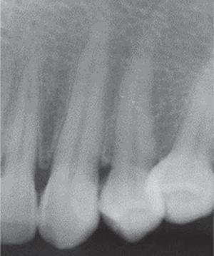 Radiografía periapical: no presenta pérdida ósea.