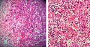 Hiperplasia pseudoepiteliomatosa y tejido de granulación, canales vasculares recubiertos por endotelio e ingurgitación de eritrocitos, infiltrado inflamatorio con predominio de neutrófilos e histiocitos.