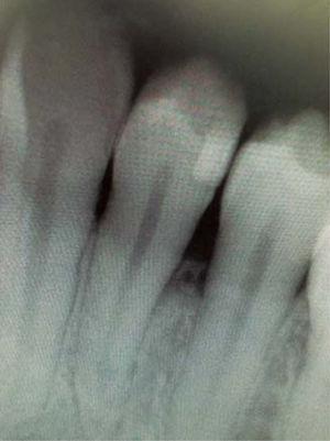 Radiografía periapical de zona de lesión Ausencia de contacto interproximal entre piezas 3.4 y 3.5.