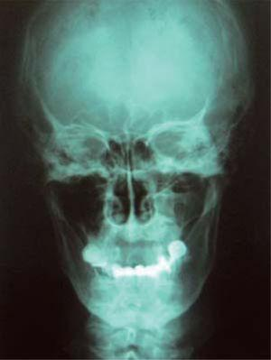 Anterior-posterior radiographic projection revealing extensive bone loss in the right jaw.